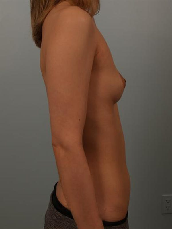 Breast Augmentation Gallery - Patient 1310311 - Image 5