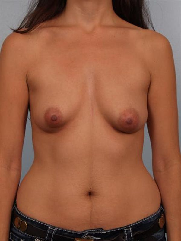 Breast Augmentation Gallery - Patient 1310312 - Image 1