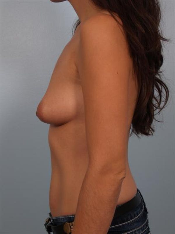Breast Augmentation Gallery - Patient 1310312 - Image 3