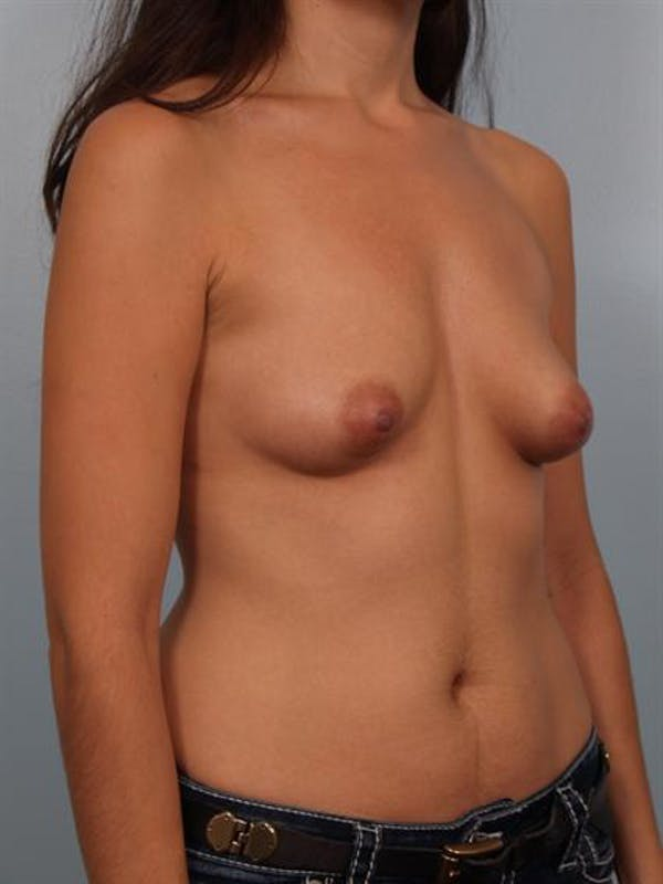 Breast Augmentation Gallery - Patient 1310312 - Image 5