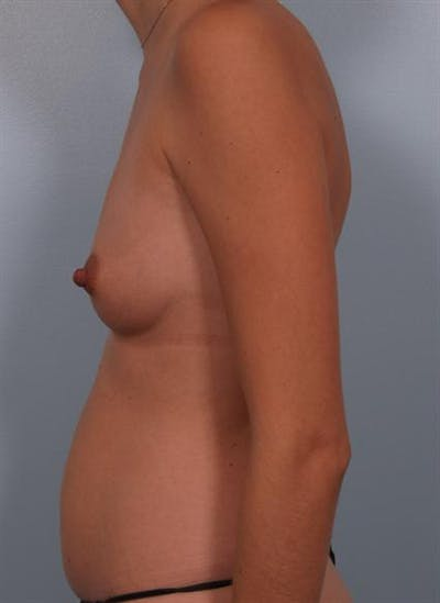 Breast Augmentation Gallery - Patient 1310314 - Image 1
