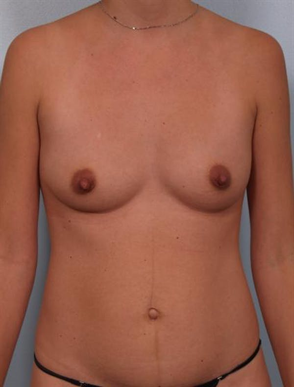 Breast Augmentation Gallery - Patient 1310314 - Image 5