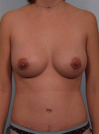 Breast Augmentation Gallery - Patient 1310314 - Image 6