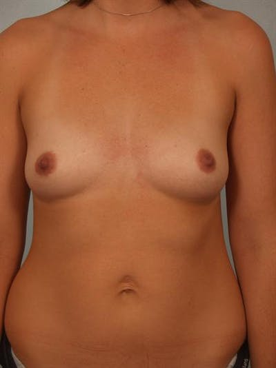 Breast Augmentation Gallery - Patient 1310315 - Image 1