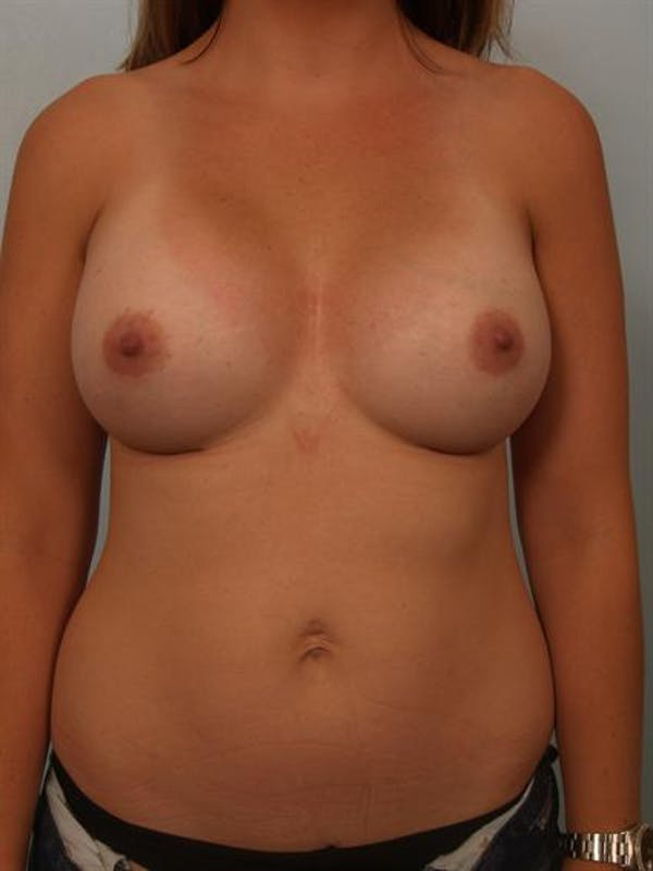 Breast Augmentation Gallery - Patient 1310315 - Image 2