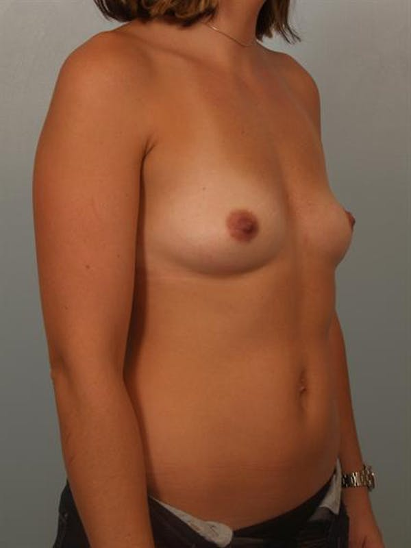 Breast Augmentation Gallery - Patient 1310315 - Image 3
