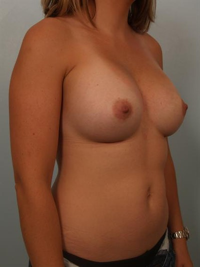 Breast Augmentation Gallery - Patient 1310315 - Image 4