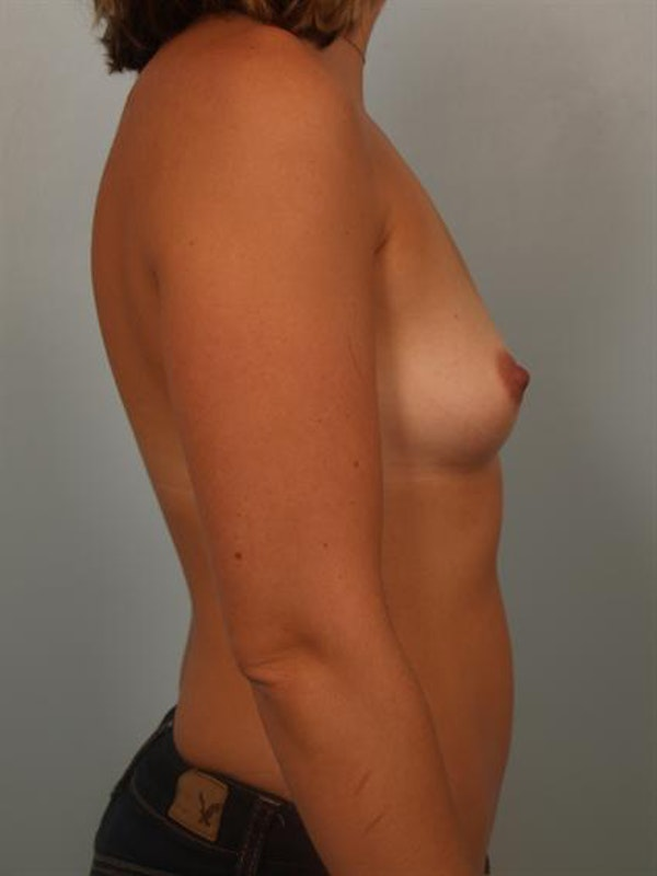 Breast Augmentation Gallery - Patient 1310315 - Image 5