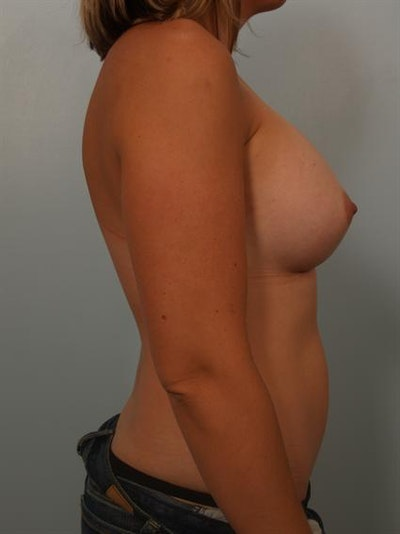 Breast Augmentation Gallery - Patient 1310315 - Image 6