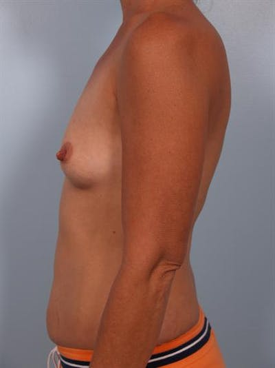 Breast Augmentation Gallery - Patient 1310316 - Image 1