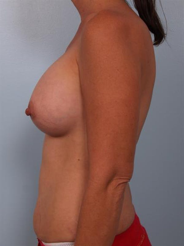 Breast Augmentation Gallery - Patient 1310316 - Image 2