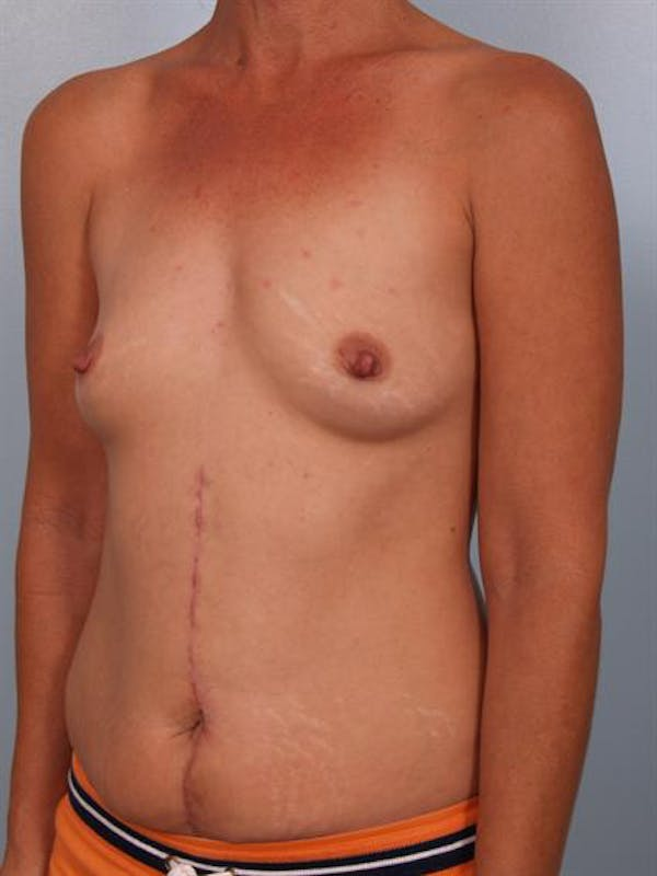 Breast Augmentation Gallery - Patient 1310316 - Image 3