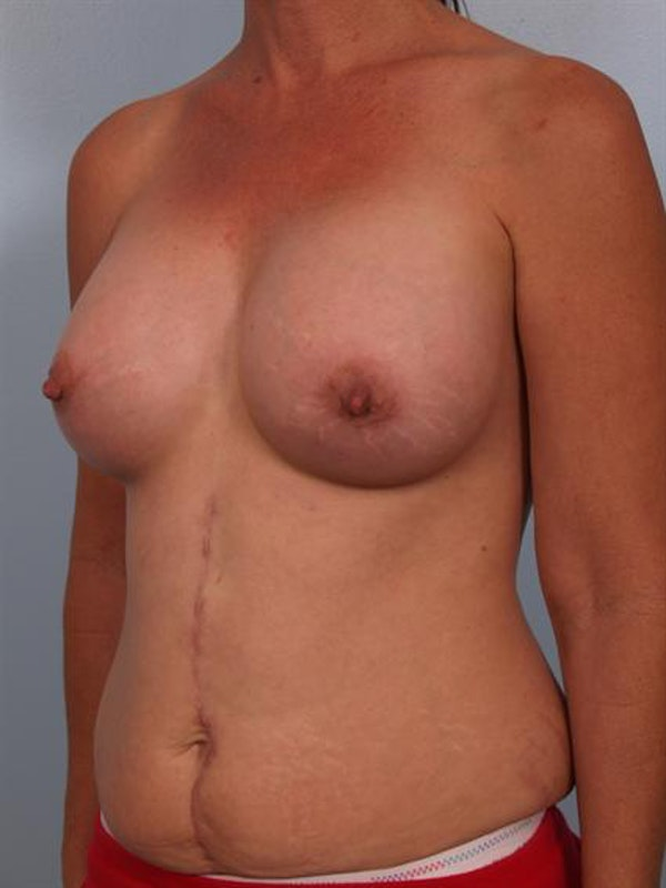 Breast Augmentation Gallery - Patient 1310316 - Image 4