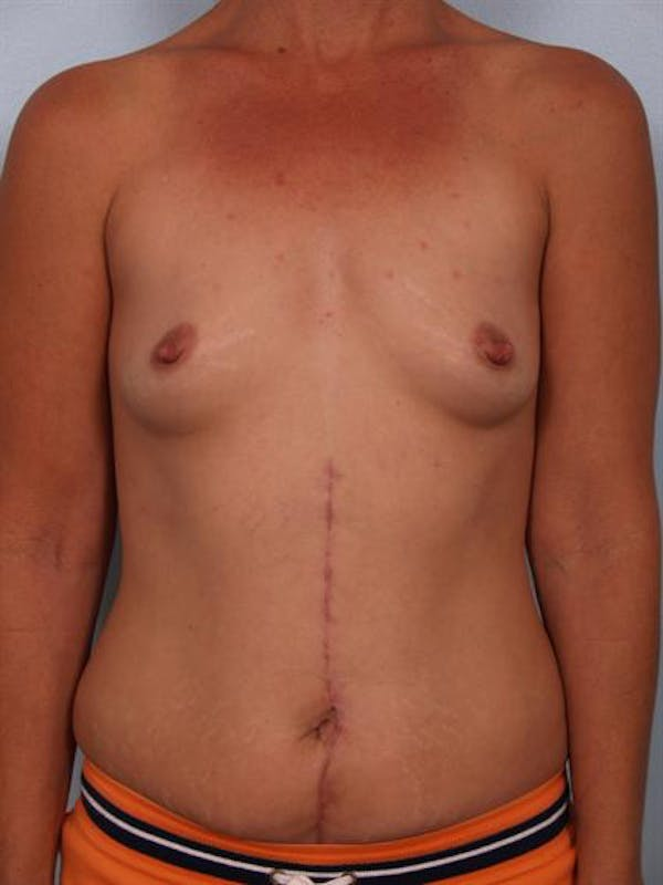 Breast Augmentation Gallery - Patient 1310316 - Image 5