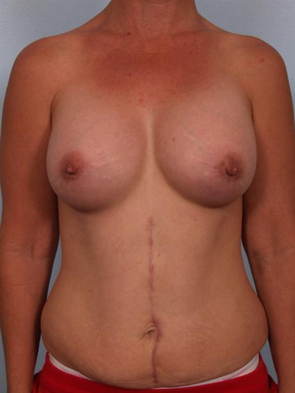 Breast Augmentation Gallery - Patient 1310316 - Image 6