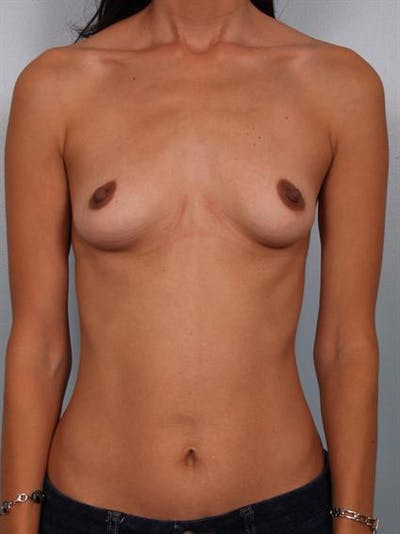 Breast Augmentation Gallery - Patient 1310317 - Image 1