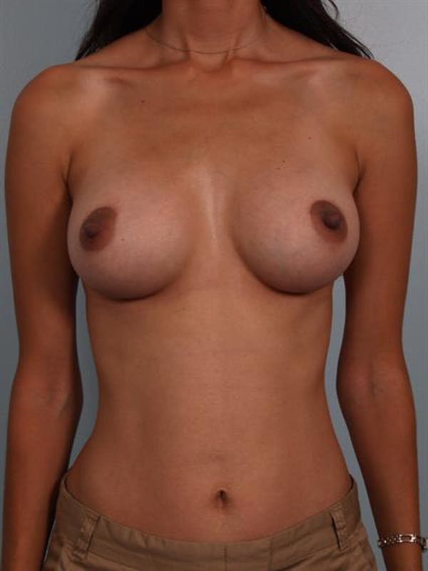 Breast Augmentation Gallery - Patient 1310317 - Image 2