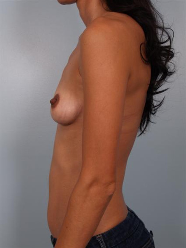 Breast Augmentation Gallery - Patient 1310317 - Image 3
