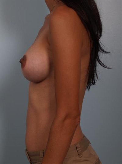Breast Augmentation Gallery - Patient 1310317 - Image 4