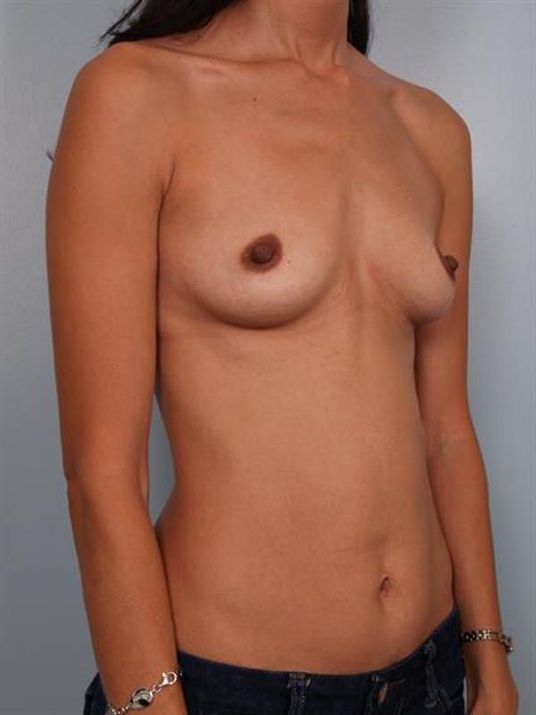 Breast Augmentation Gallery - Patient 1310317 - Image 5