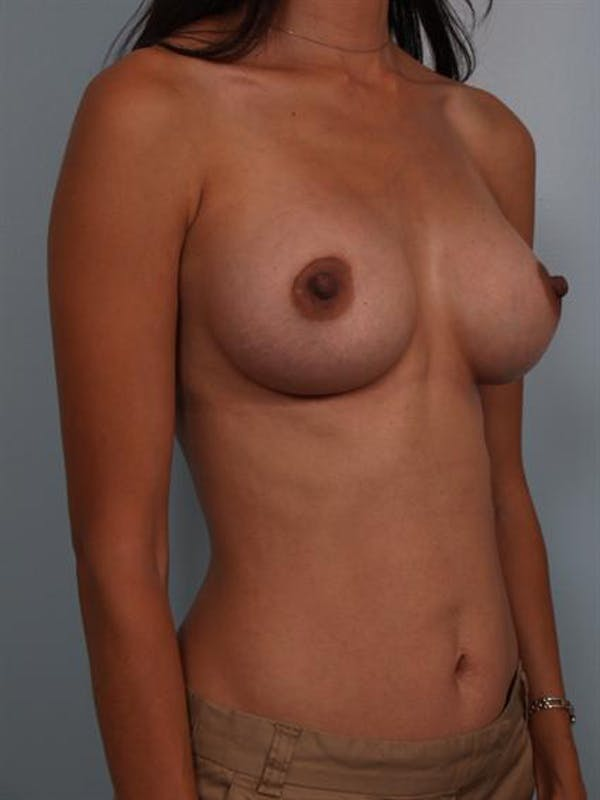 Breast Augmentation Gallery - Patient 1310317 - Image 6