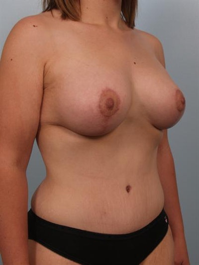 Breast Augmentation Gallery - Patient 1310318 - Image 6