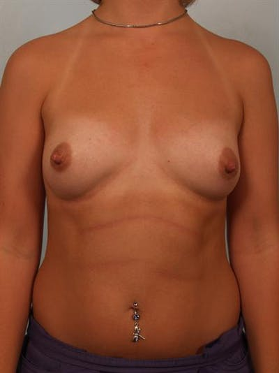 Breast Augmentation Gallery - Patient 1310319 - Image 1