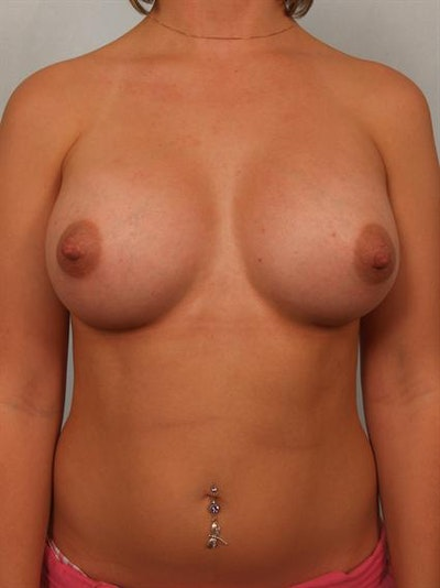 Breast Augmentation Gallery - Patient 1310319 - Image 2