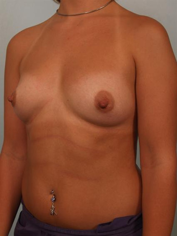 Breast Augmentation Gallery - Patient 1310319 - Image 3