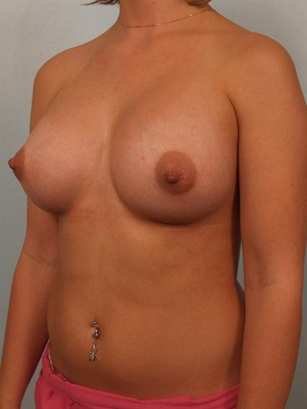 Breast Augmentation Gallery - Patient 1310319 - Image 4