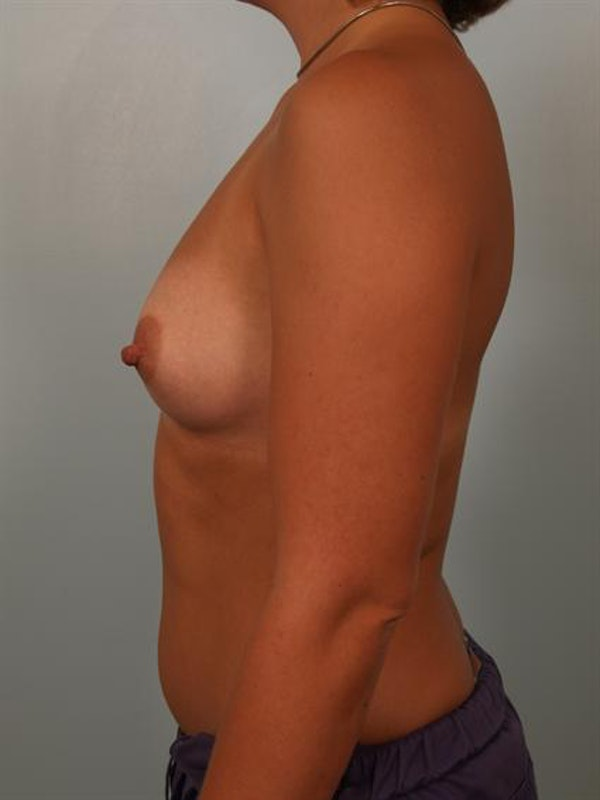 Breast Augmentation Gallery - Patient 1310319 - Image 5