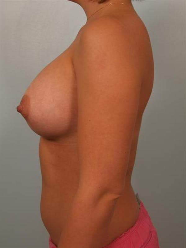 Breast Augmentation Gallery - Patient 1310319 - Image 6