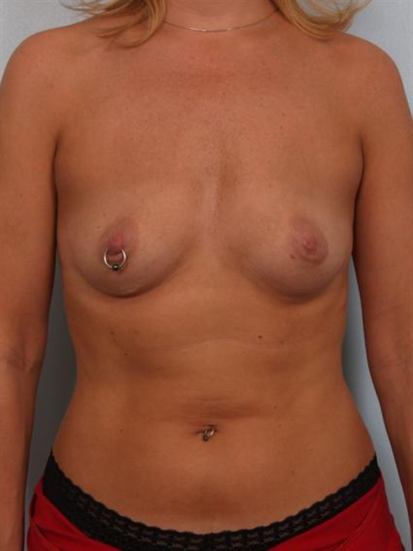 Breast Augmentation Gallery - Patient 1310356 - Image 1