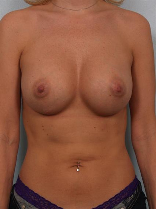 Breast Augmentation Gallery - Patient 1310356 - Image 2