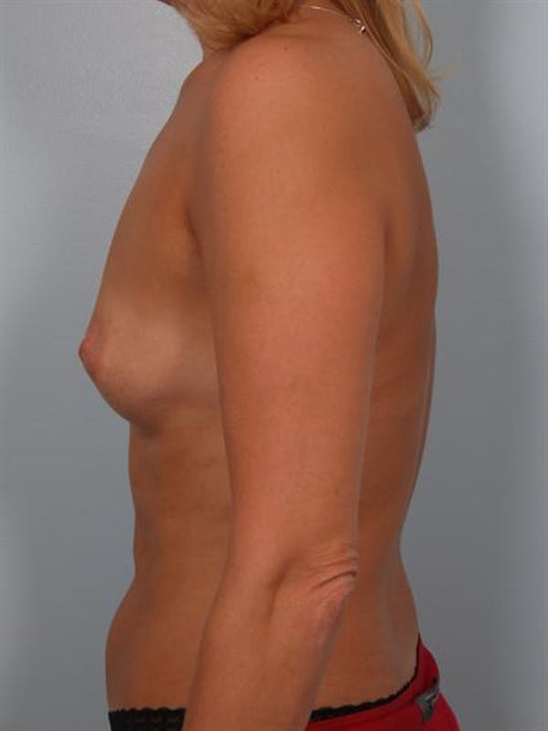 Breast Augmentation Gallery - Patient 1310356 - Image 3