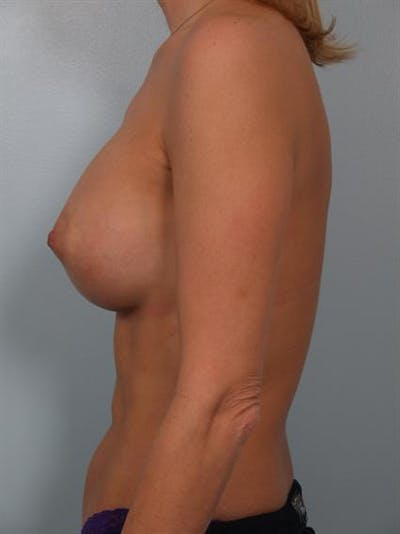 Breast Augmentation Gallery - Patient 1310356 - Image 4