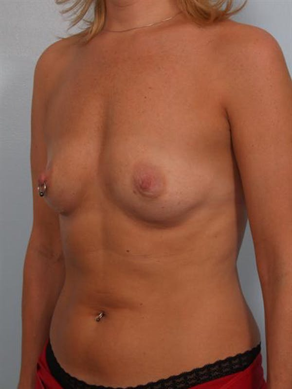 Breast Augmentation Gallery - Patient 1310356 - Image 5