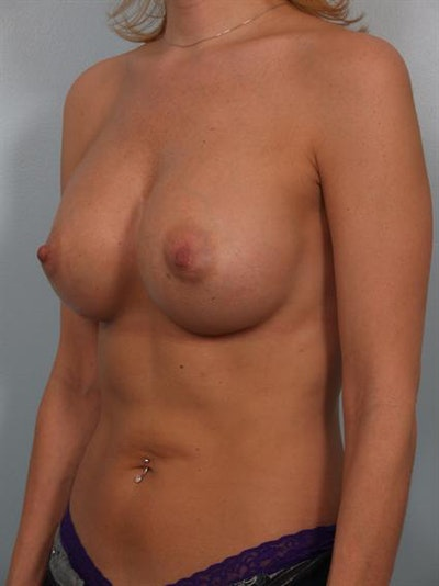 Breast Augmentation Gallery - Patient 1310356 - Image 6