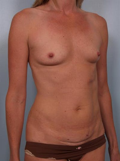 Breast Augmentation Gallery - Patient 1310357 - Image 1