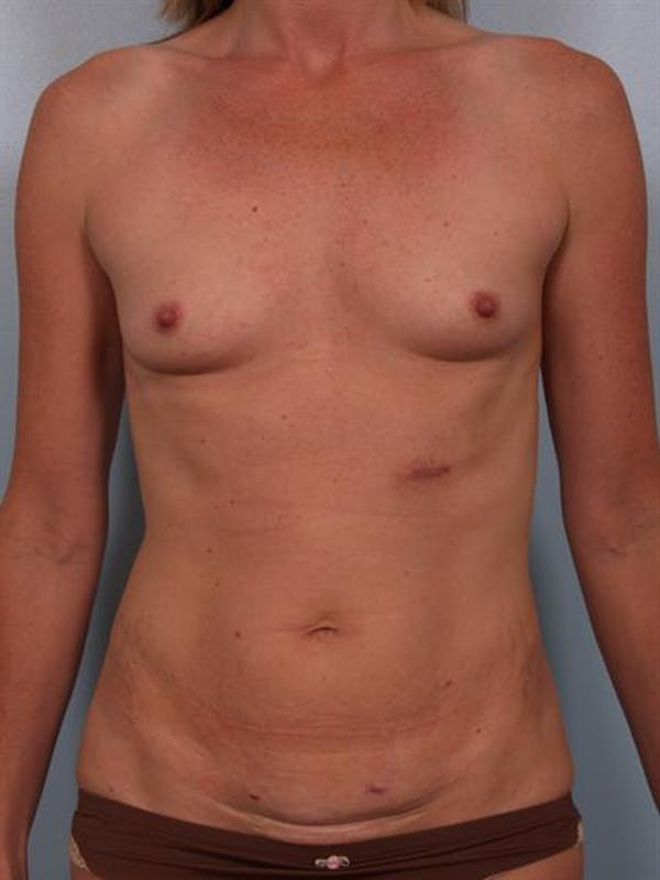 Breast Augmentation Gallery - Patient 1310357 - Image 5