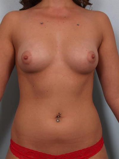 Breast Augmentation Gallery - Patient 1310358 - Image 1