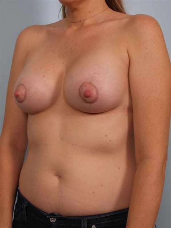 Breast Augmentation Gallery - Patient 1310359 - Image 4