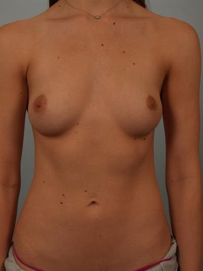 Breast Augmentation Gallery - Patient 1310360 - Image 1