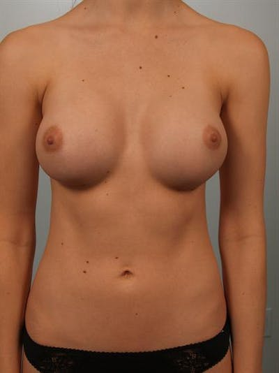 Breast Augmentation Gallery - Patient 1310360 - Image 2