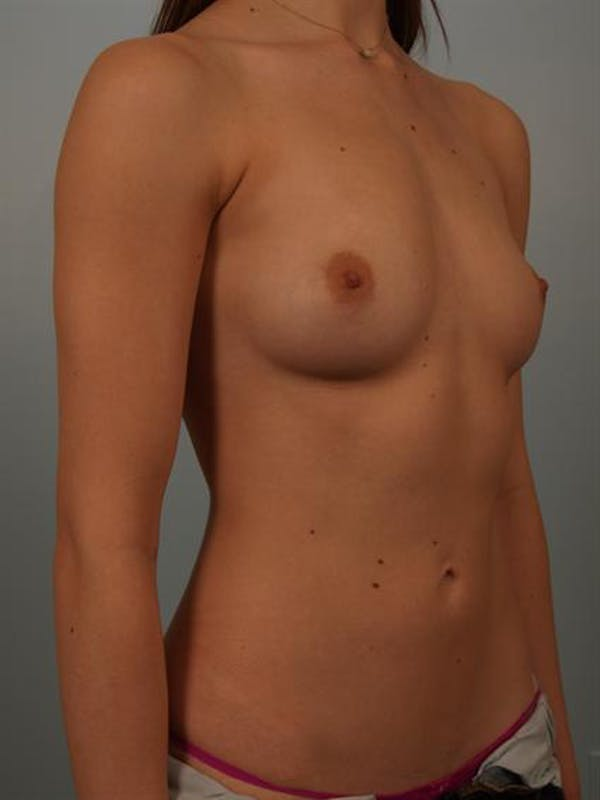 Breast Augmentation Gallery - Patient 1310360 - Image 3