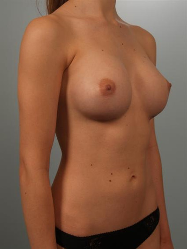 Breast Augmentation Gallery - Patient 1310360 - Image 4