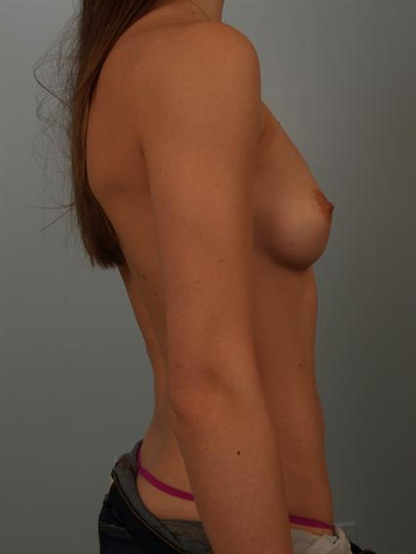 Breast Augmentation Gallery - Patient 1310360 - Image 5