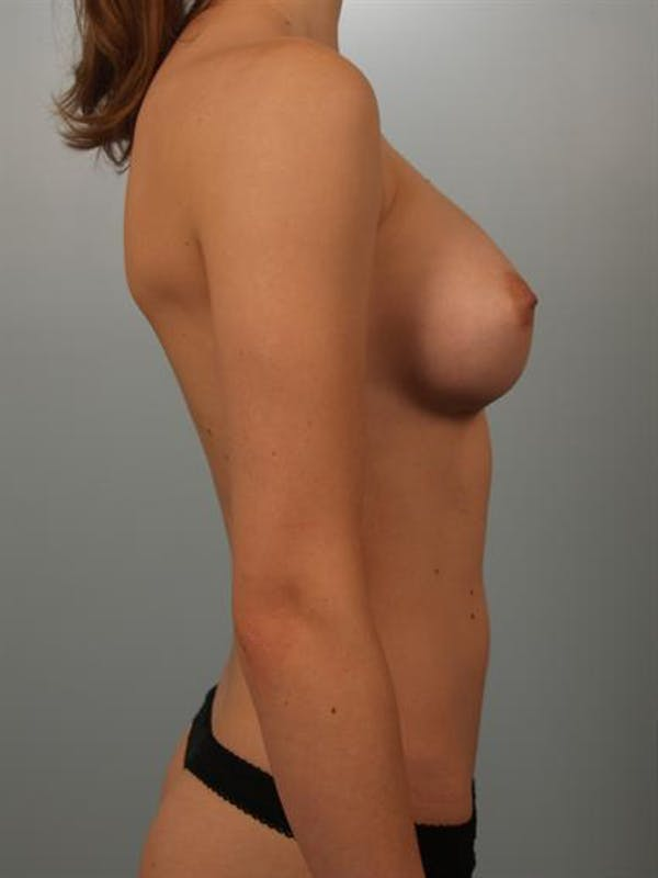 Breast Augmentation Gallery - Patient 1310360 - Image 6