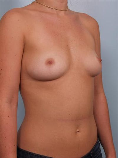 Breast Augmentation Gallery - Patient 1310363 - Image 1