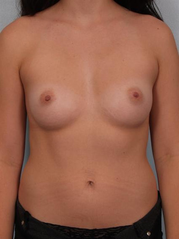 Breast Augmentation Gallery - Patient 1310364 - Image 1